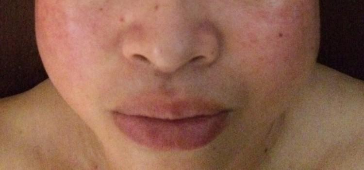 《RE:小顔調整フェイシャル》結果事例 30代女性